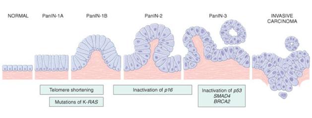 Preneoplastic lesions