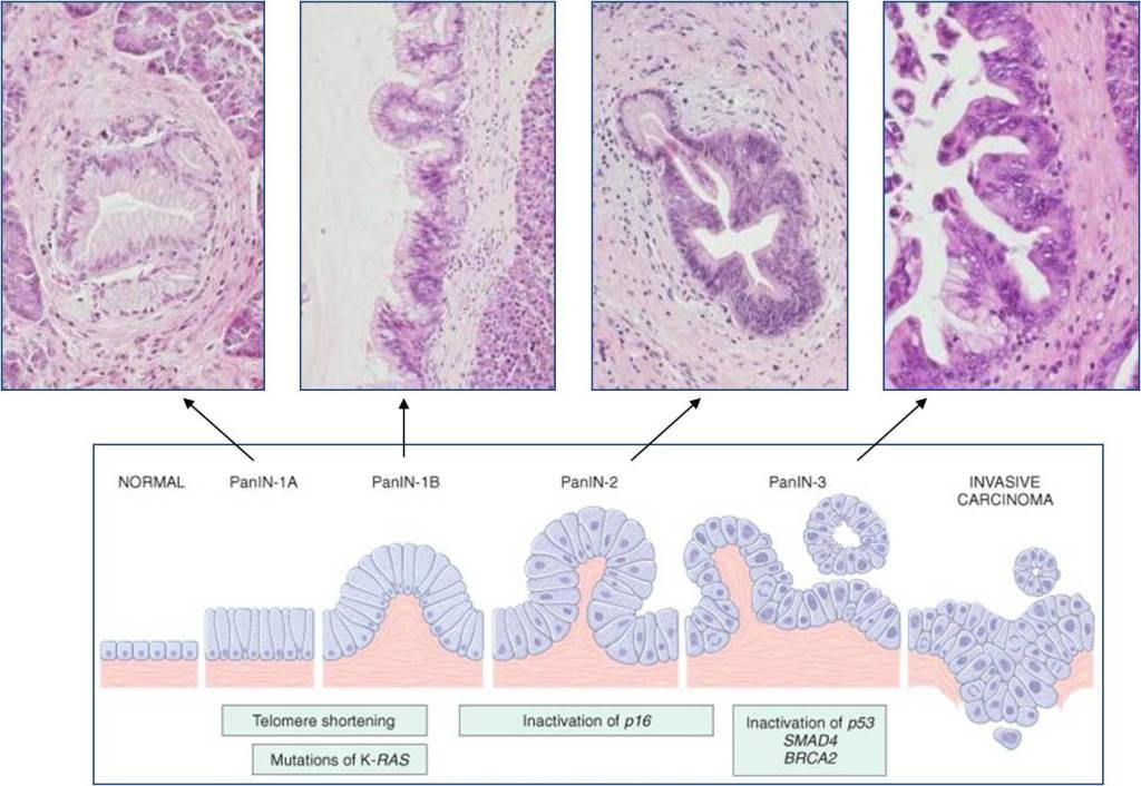 Preneoplastic lesions 2